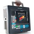 Máy siêu âm màu 2D/4D Ultrasonix Sonix Tablet