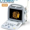 Máy siêu âm 4D xách tay Siui CTS-8800 Plus